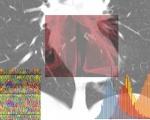 Al via il progetto AI-SCoRE per calcolare il rischio da Covid-19